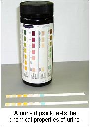 liver_disease_-_testing-4