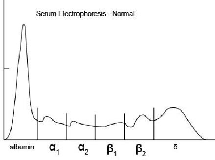 serum_protein_electrophoresis-2