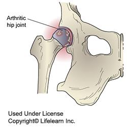 artritis_-_2009