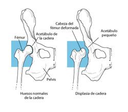 displasia-de-cadera