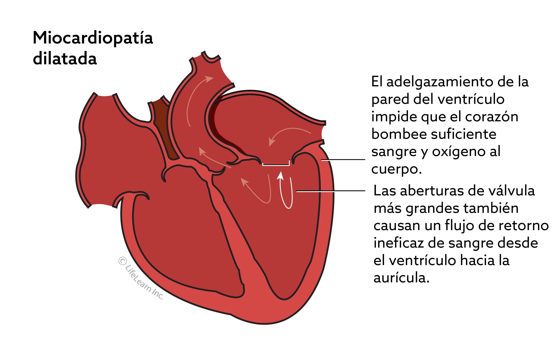 miocardiopatia_dilatada