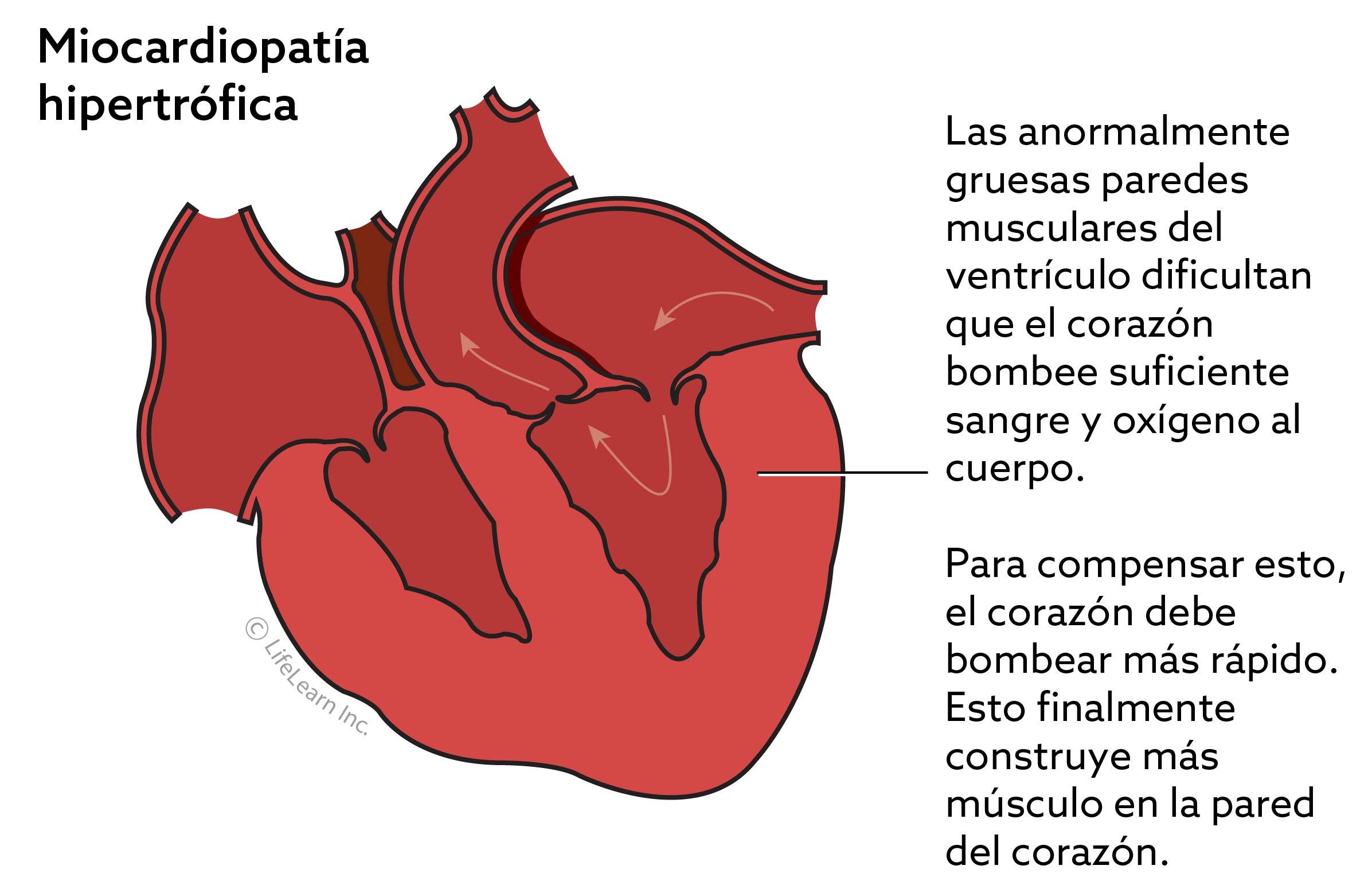 miocardiopatia_hipertrofica