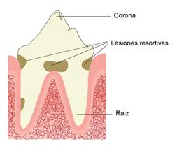 lesiones_resortivas_orales_en_gatos-2