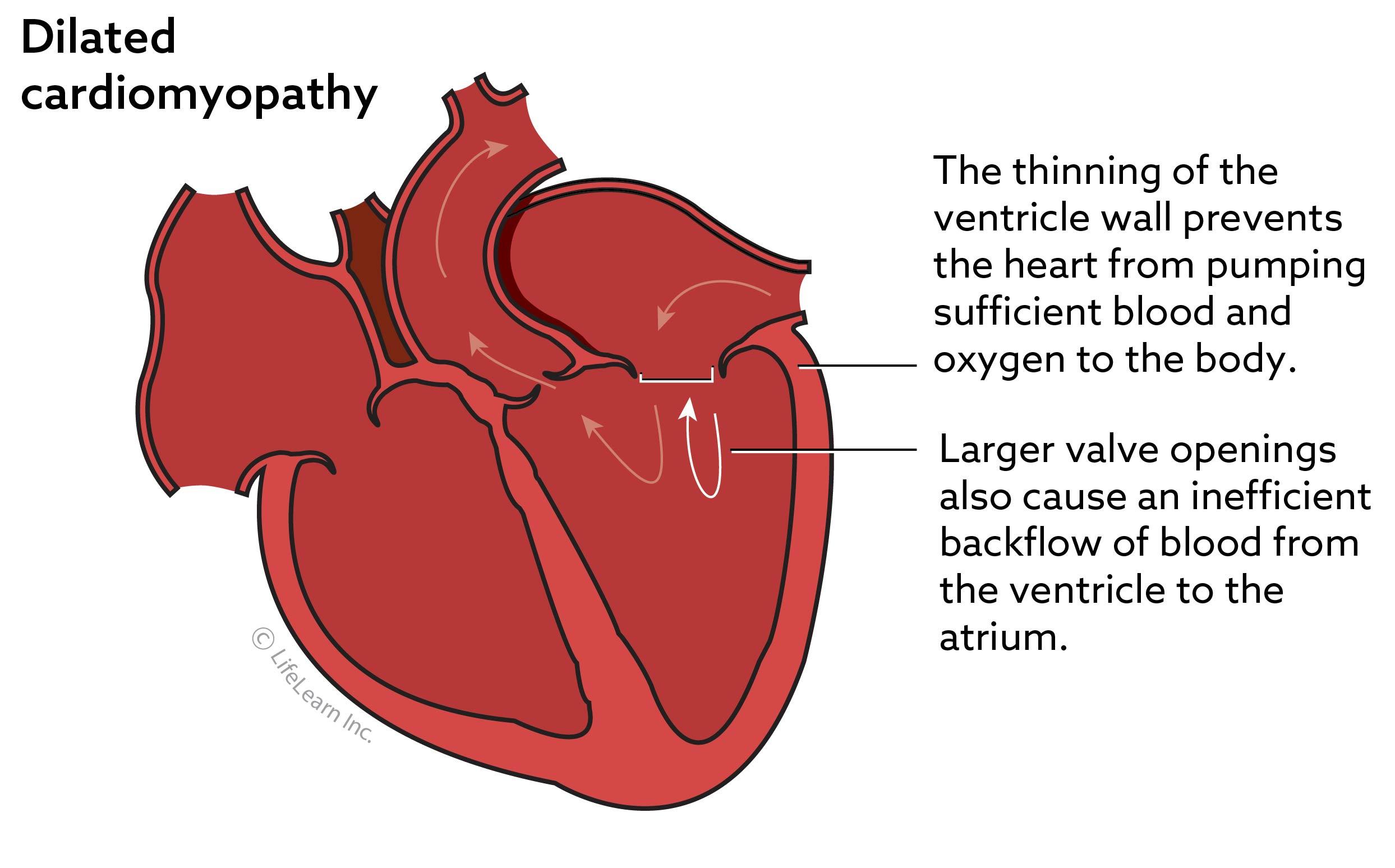 heart_disease_dilated_cardiomyopathy_2017