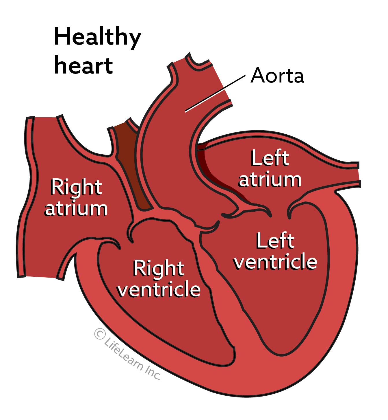 heart_disease_healthy_heart_updated2017-1-03