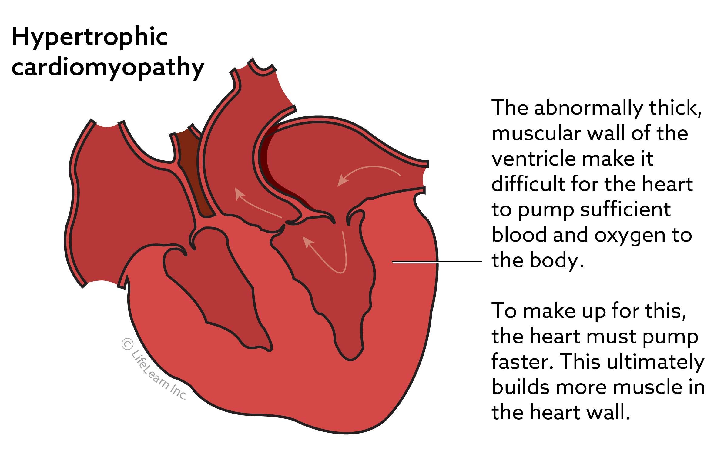 hypertrophic_cardiomyopathy-04