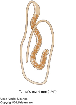 whipworm2