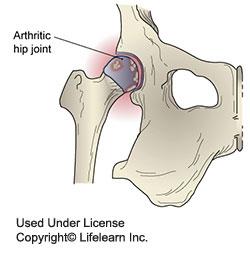 osteoarthritis-in-dogs