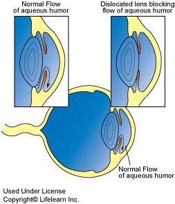 glaucoma_2_2009