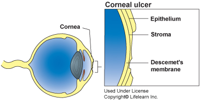 corneal_ulcer1