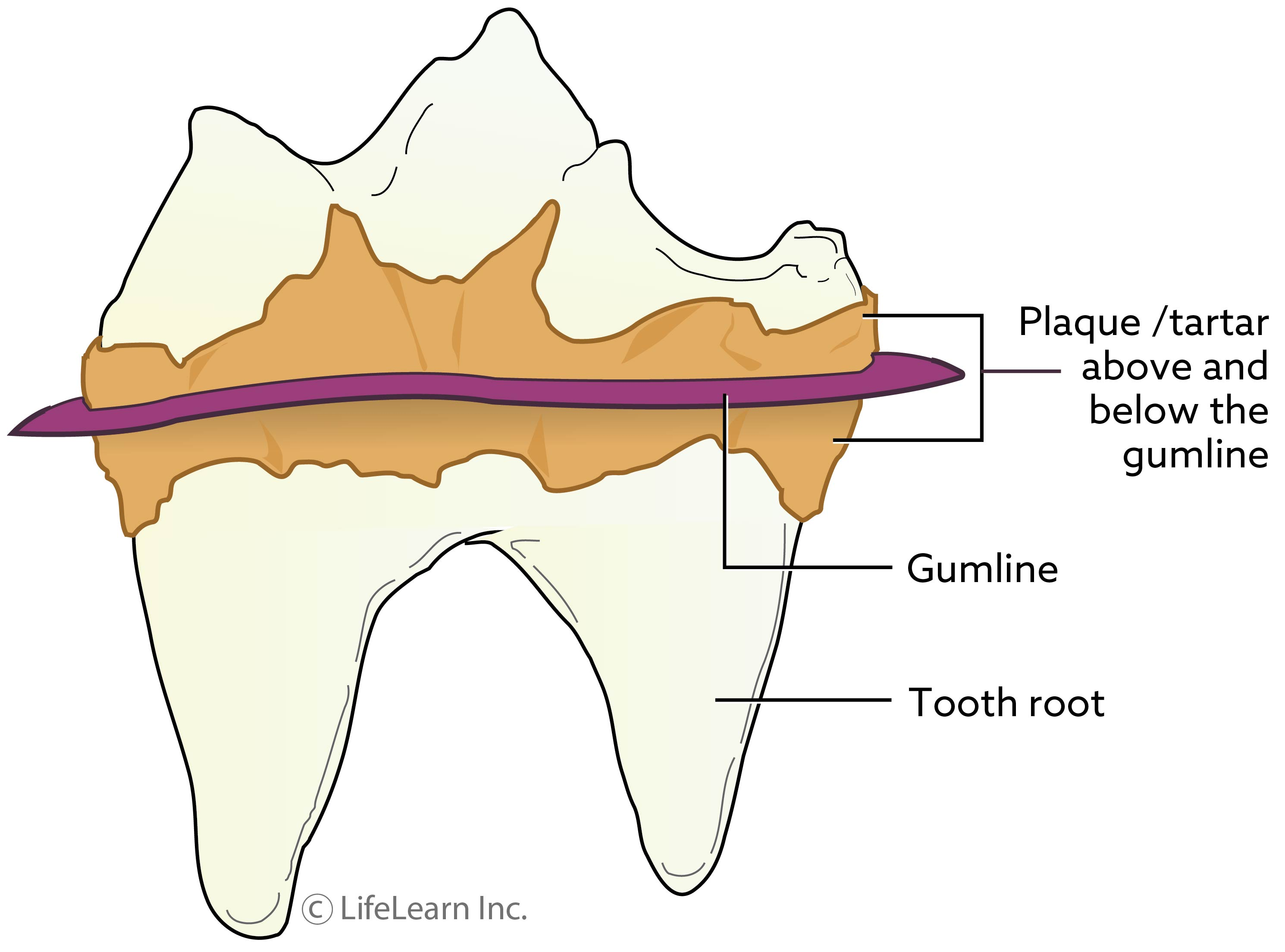 tooth-plaque_updated2017_2