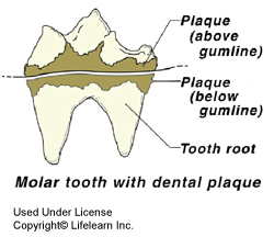 dental_disease1