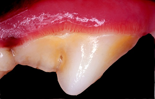 Gingivitis of the left upper fourth premolar