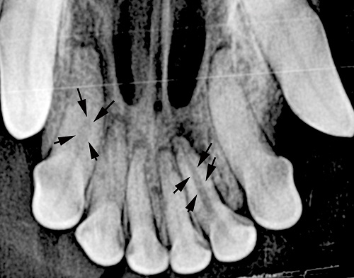 X-rays showing two non-vital (dead) incisors affected by internal disease necessitating extraction