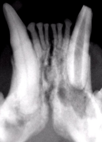 Abscessed root of a lower canine tooth