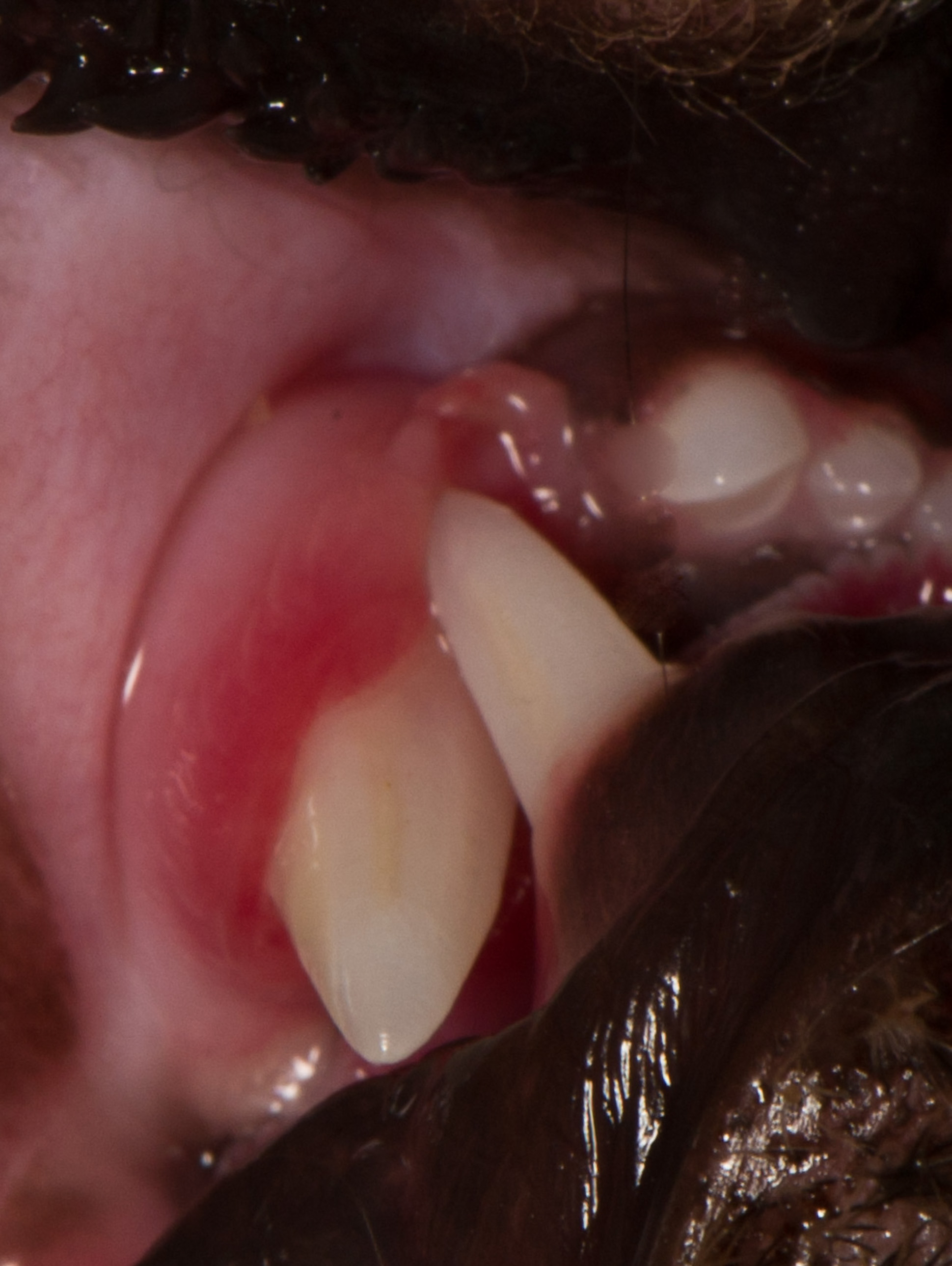 Maxillary gum line, lacerated by malpositioned mandibular canine