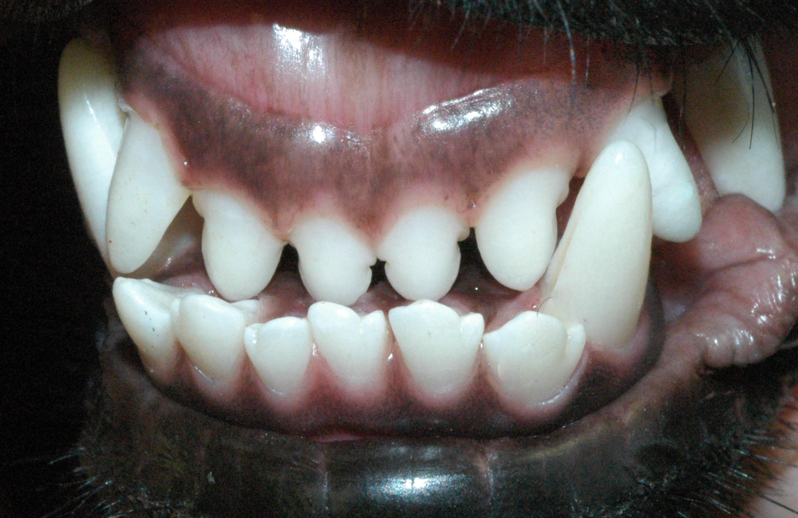 Non-functional mandibular mesioclusion