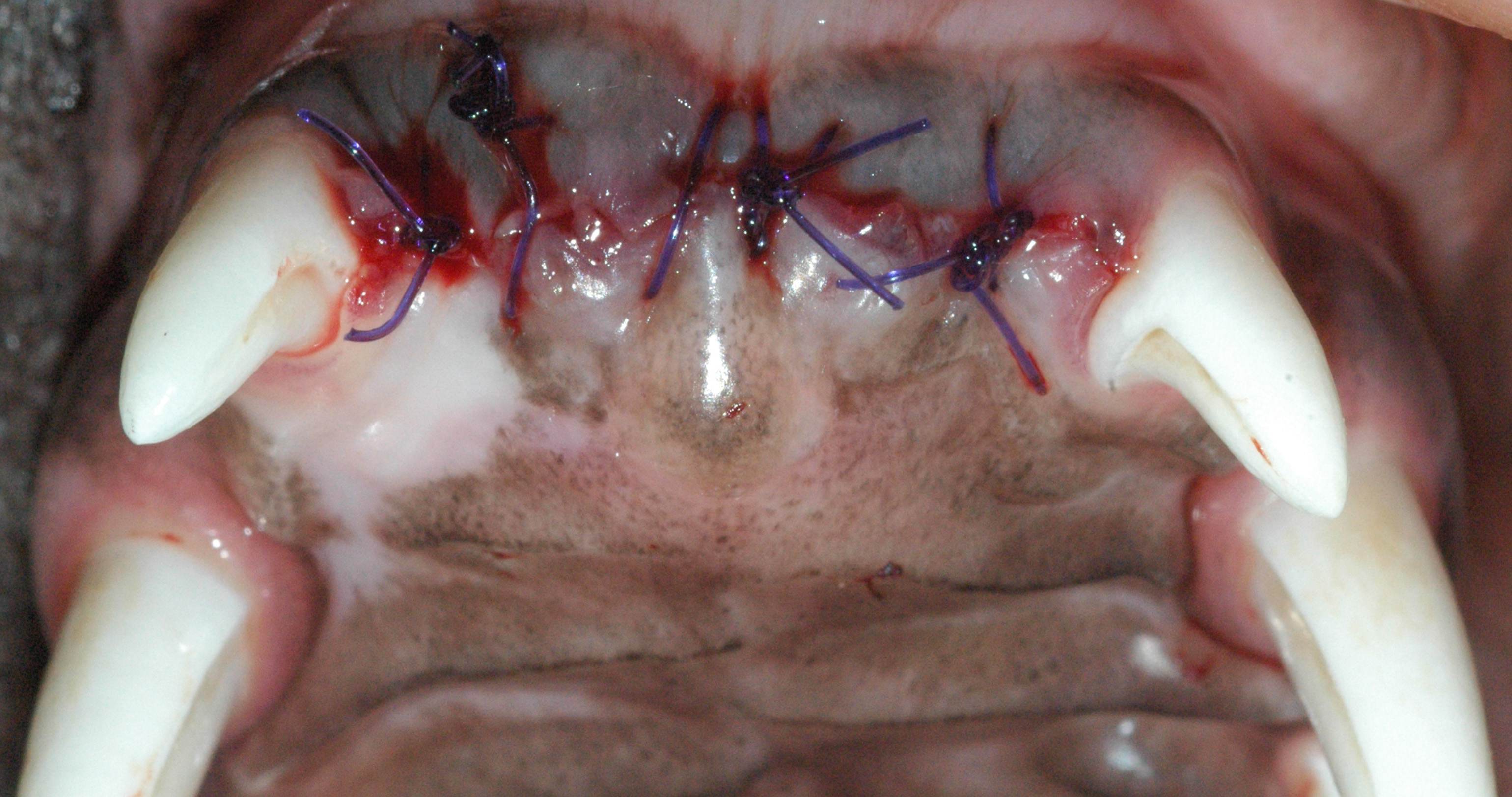 Maxillary incisor extractions alleviating impingement