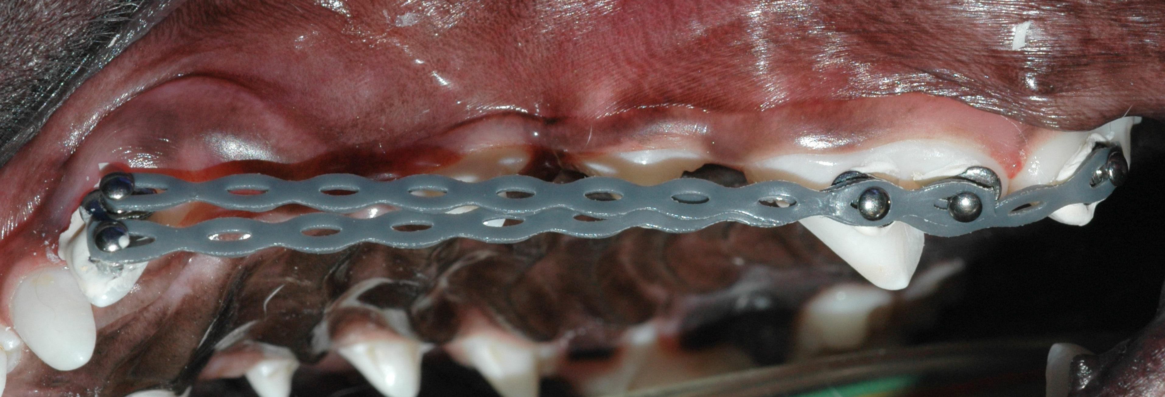 Orthodontic buttons and elastics used to move the malpositioned canine caudally