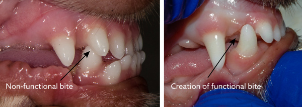 Functional bite creation through incisor removal