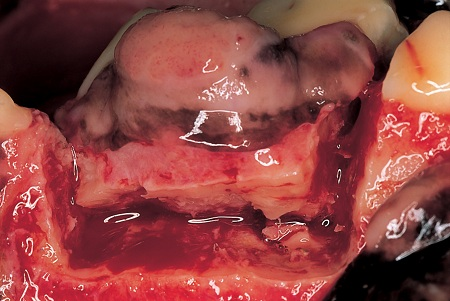 Surgical site used to remove the tumor